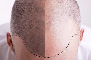 השתלת שיער בטורקיה: הפתרון (הכמעט) קבוע לנשירת שיער